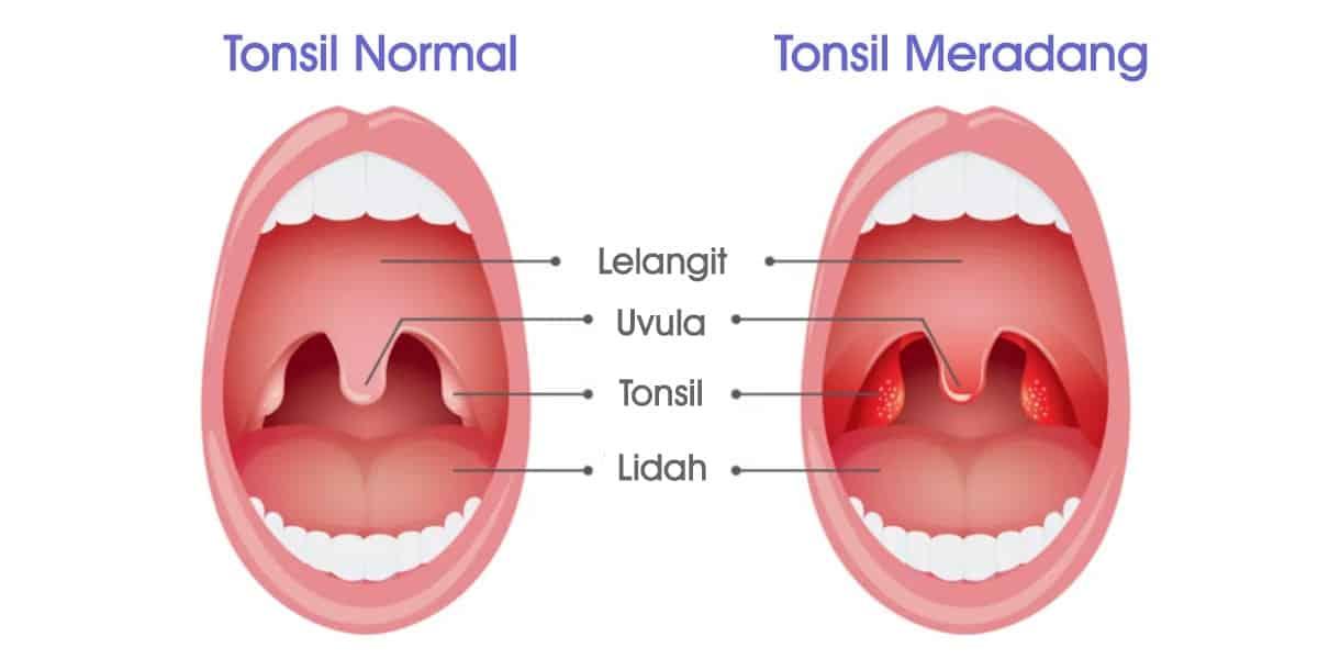 Cara Merawat Tonsil